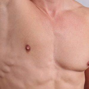 Best Gynecomastia Removing Cream Show Without Shame